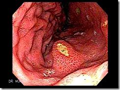 UlcersMultiple5
